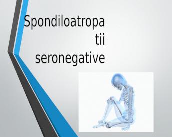 reumatolog de diagnostic al durerii articulare)